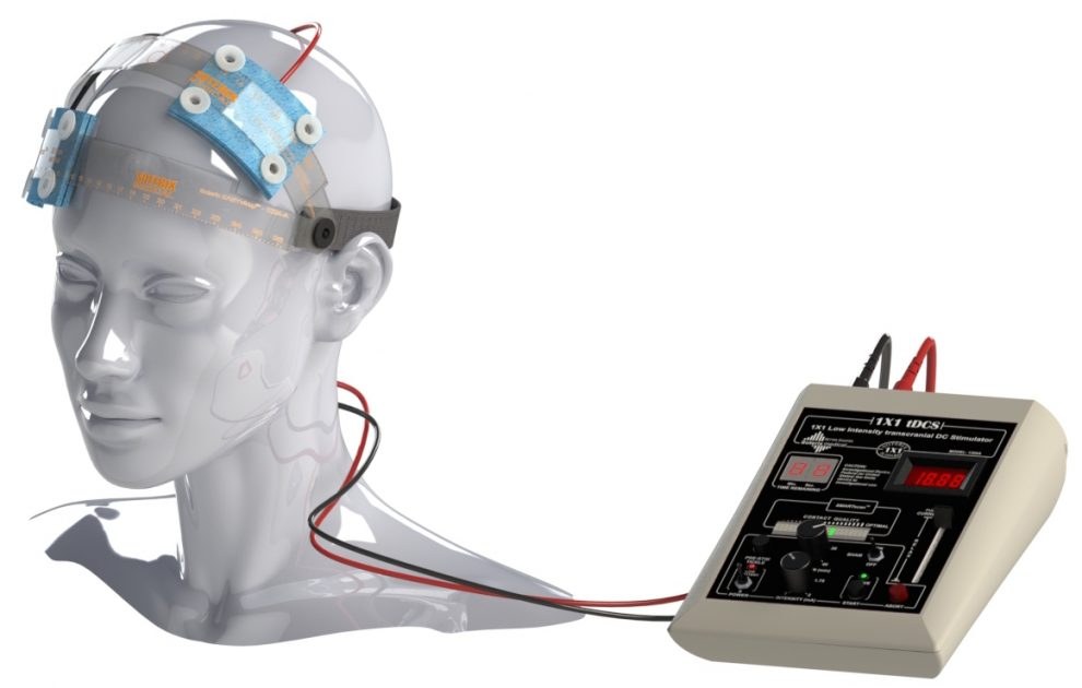Europe's Mediacally Permitted Transcranial Direct Current Stimulation Can Improve The Symptoms Of Depression